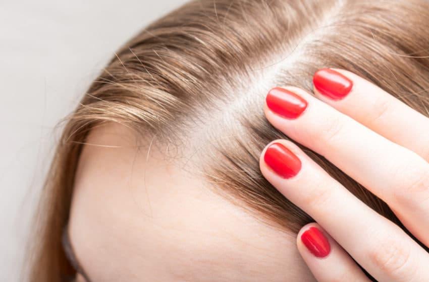 4 טיפים שכל אחת צריכה להכיר לשיקום השיער
